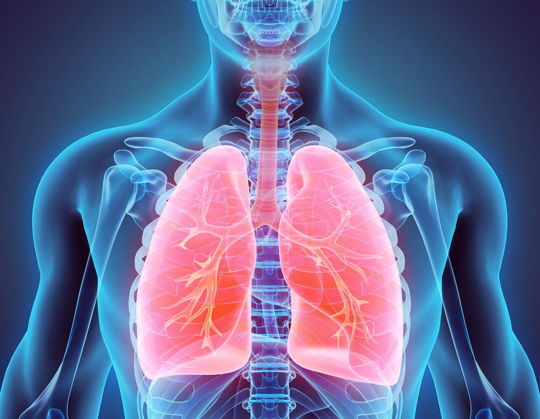 No Brasil, 87,9% dos casos de câncer de pulmão são diagnosticados quando não há mais possibilidade cirúrgica
